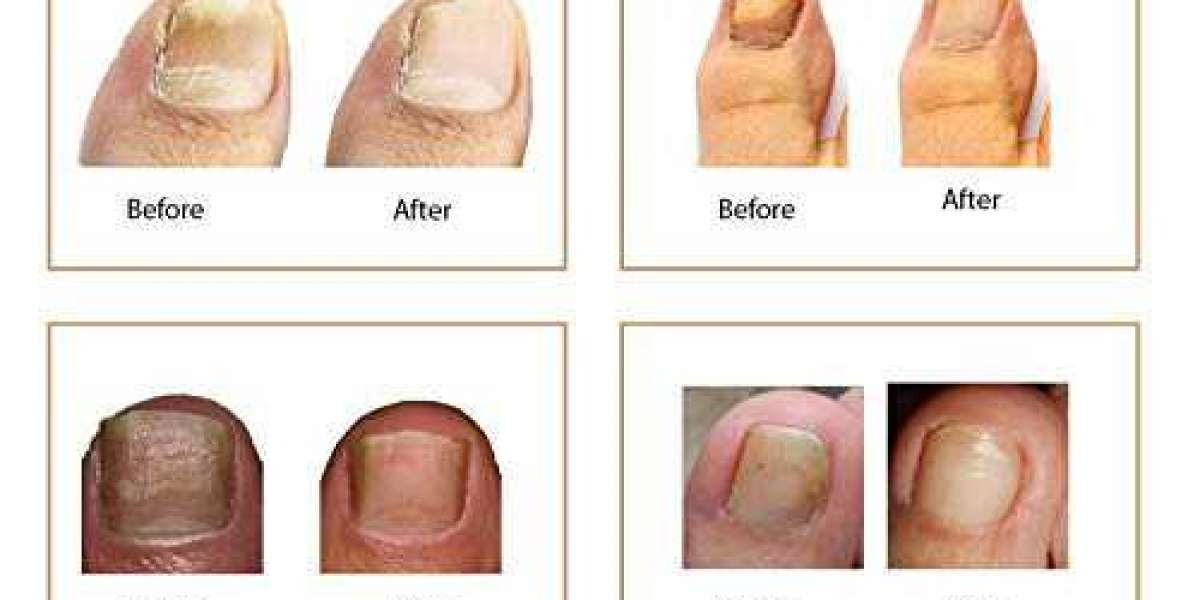 https://ipsnews.net/business/2021/07/19/fungus-eliminator-toenail-treatment-formula-uses-price-side-effects-ingredients-