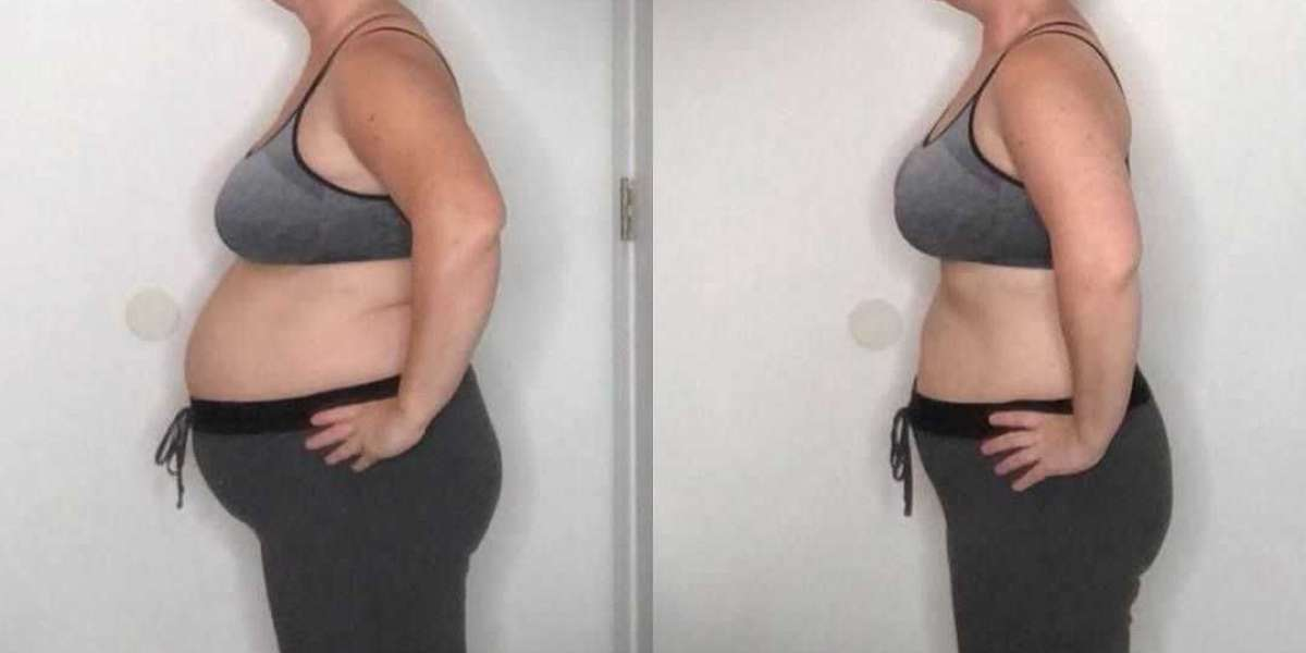 This Supplement Really Famous Weight Loss Technique?